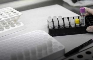 Dos empresas del programa Mind the Gap forman parte de la 'Alianza COVID-19' para el diagnóstico de la enfermedad causada por el coronavirus SARS-CoV-2
